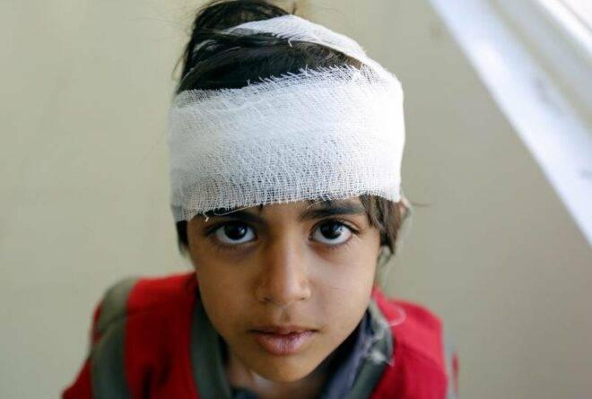أسوأ ما خلفته حرب اليمن