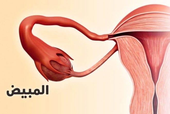 متلازمة تكيس المبايض… أعراض روتينية، قد تٌنذر بكارثة
