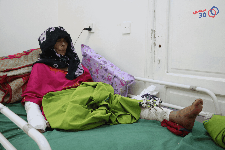 امرأة بساق مبتورة نتيجة إصابتها بلغم في ريف تعز